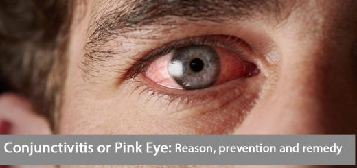 2b319e60a6f 6 Ways to Treat Pink Eye Symptoms