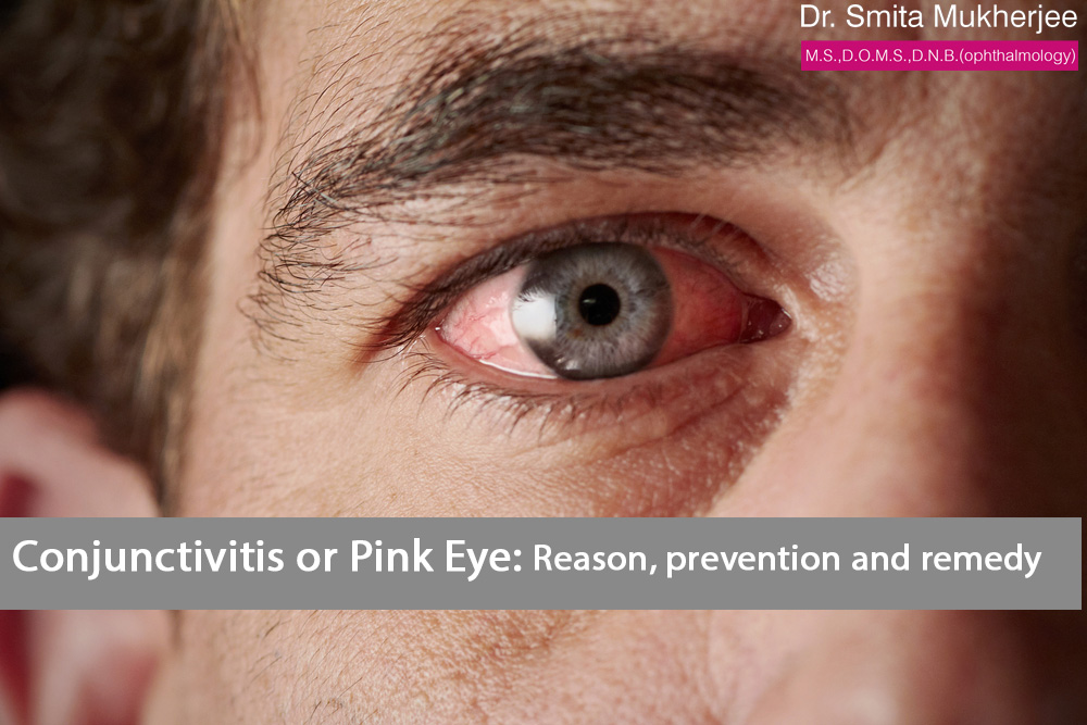 6 Ways to Treat Pink Eye Symptoms
