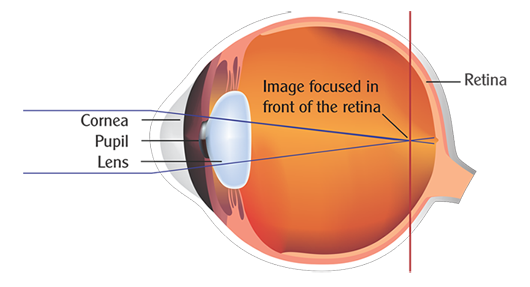 Myopia, its prevention and cure !