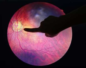 Everything You Need To Know About Diabetic Retinopathy