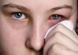 Is Conjunctivitis (Pink Eye) Symptom of Coronavirus?